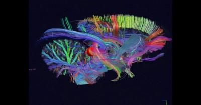 cervello_3