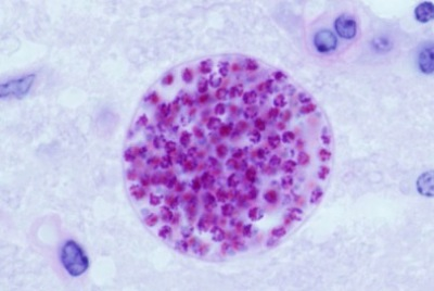 Toxoplasma_gondii